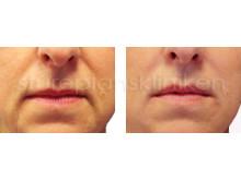 Lyft av mungipor med Restylane: Före och Efter | Stureplanskliniken