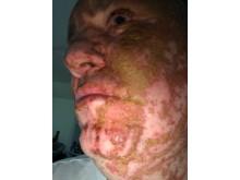 Victim after acid attack
