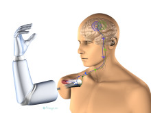 Thought-controlled prosthesis