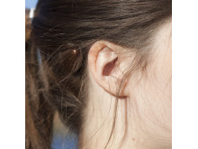 Cochlear_Baha 5 connect_profil nah