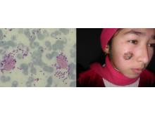 Bioforschung an der TH Wildau vs. Ausbreitung von Tropenkrankheit
