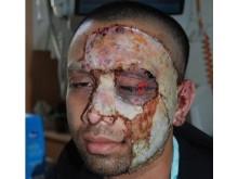 Image of victim's injuries