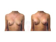 Macrolane för bröstförstoring - Stureplanskliniken