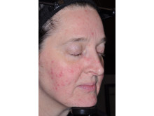 Soolantra (ivermektin) - före behandling