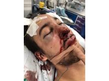 Victim injuries