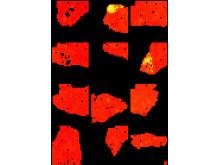 Analys av tolv delar av en prostata innehållande öar av tumörkloner. Här tillhandahålls en gul genaktivitets signatursignal genom oövervakad AI-metod för att demonstrera närvaro av cancerceller med en unik genuttrycks signatur.