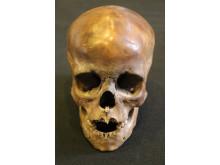 Kraniet af et syv eller otteårigt barn fundet i Horreby Lyng
