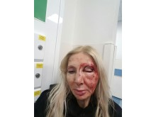 Image of injured victim - she does not wish to be named