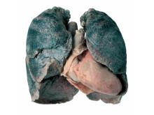 Den sjuka lungan