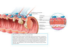 Entstehung von Darmkrebs/Wucherungen im Darm