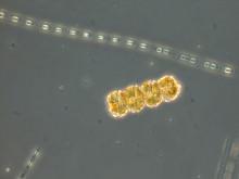 Koloni av dinoflagellaten Peridiniella catenata med 4 celler. Foto: Helena Höglander