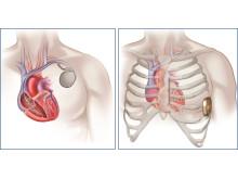 Här inplanteras den nya typen av ICD - utanför bröstkorgen