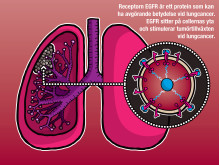 EGFR kan ha betydelse vid lungcancer