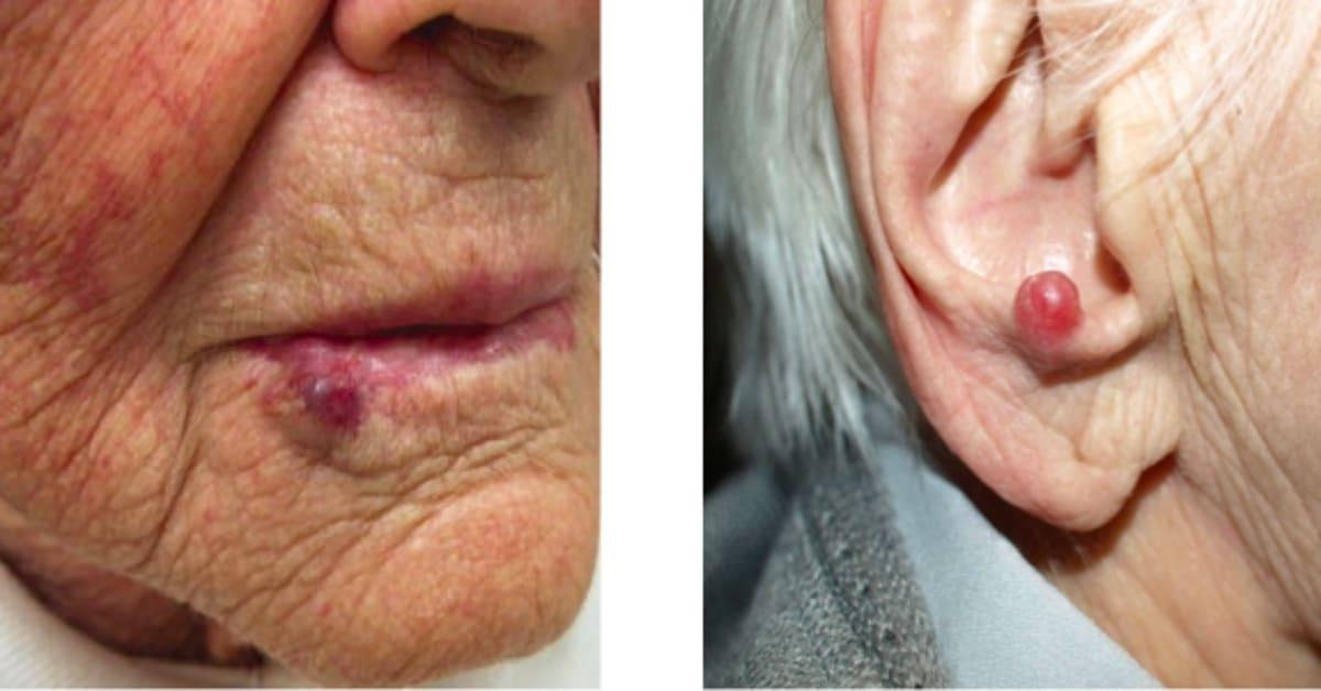 Ovanlig hudcancersjukdom okar i sverige