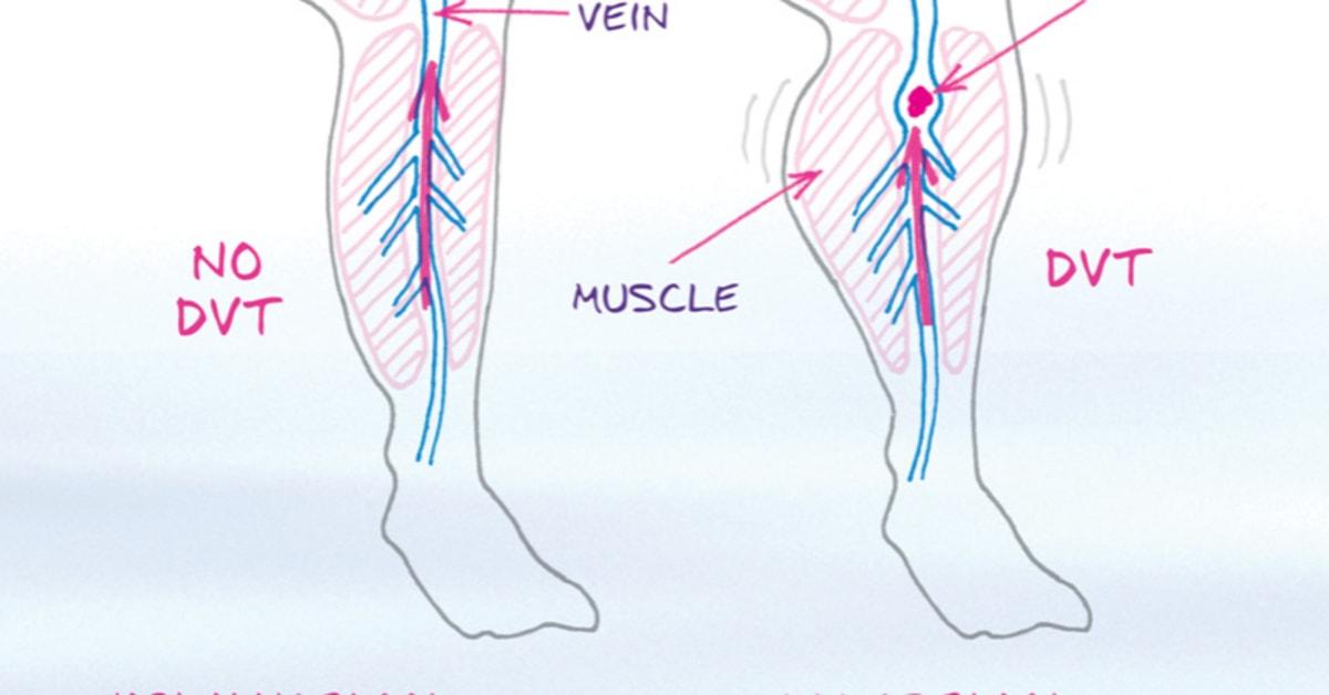 blodpropp i benet hur länge