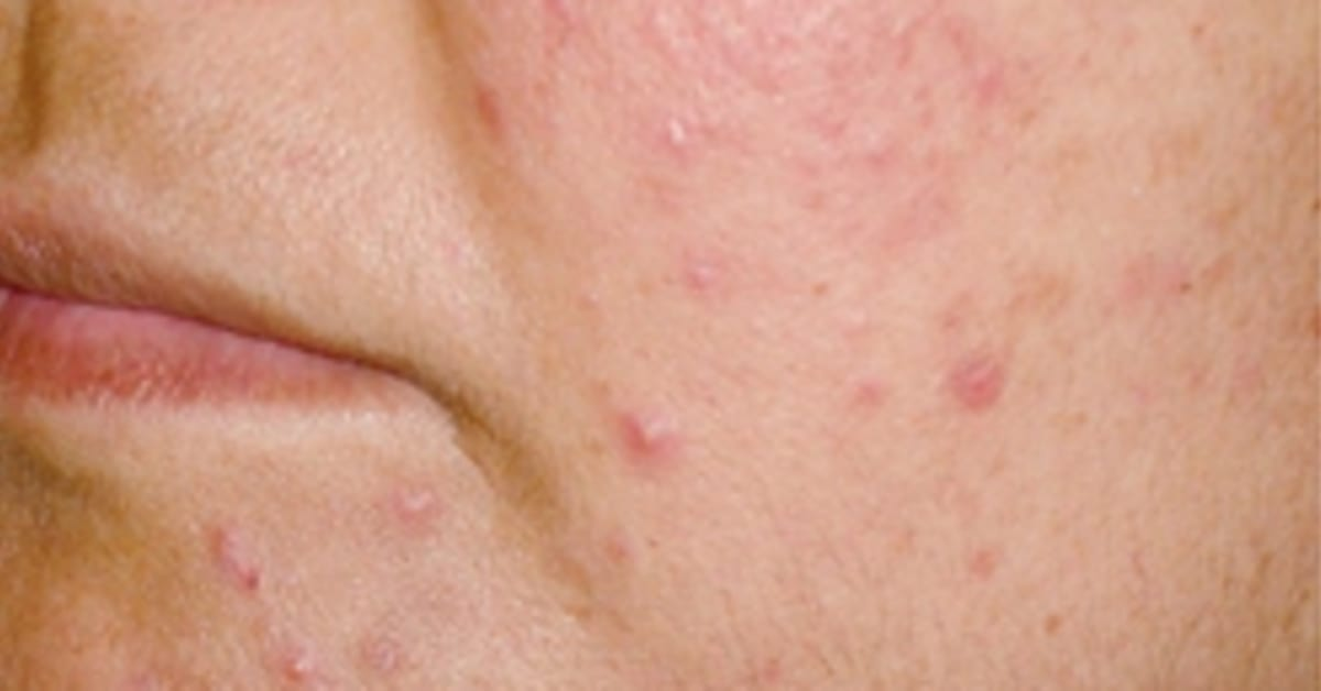 hormonknopper i ansigtet voksne