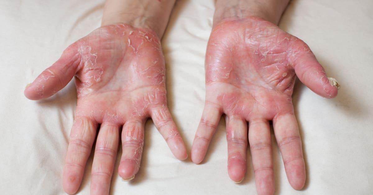 psoriasis i handflatorna