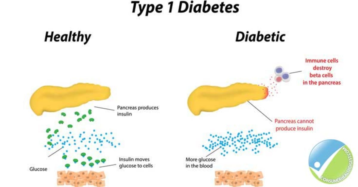 an overview of type i diabetes | diabetes🔥 | answer this here now type 2 diabetes overview,you want something special about diabetes⭐️⭐️⭐️⭐️⭐️ help today.