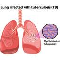 24 miljoner till forskning om tuberkulos och antibiotikaresistens