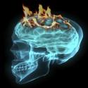 Brainchild ska öka förståelsen för särskilt begåvade barn