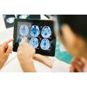 Svensk hjärnforskning får 42 nya miljoner för att lösa hjärnans mysterium