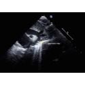 Ultraljud kan upptäcka hjärtfel efter framgångsrik operation