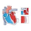 Hjärt-Lungfondens stora forskningsanslag 2017: Ny forskning om hjärtpump kan rädda liv