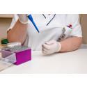 Nya markörer för att hitta sjukdomar snabbare