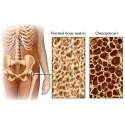 700 osteoporosfrakturer årligen i Sundsvall – de flesta i onödan