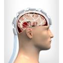 Strokefinder – a microwave helmet