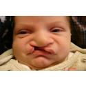 Ökad risk för psykisk ohälsa hos barn med läpp-käk-gomspalt