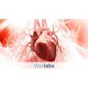 Sambandet mellan hjärt-kärlsjukdom och prediabetes