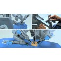 Asia-Pacific Surgical Robotics System Market 2017-2022- Analysis and Trends
