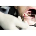Overraskende for hver anden dansker: Betændelse i tænder og mund kan forværre sygdomme andre steder i kroppen