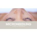 Microneedling at Selma City Spa!