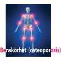 10 000 osteoporosfrakturer årligen i Skåne  – de flesta i onödan!