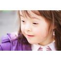 Nyfödda barn med Downs syndrom mer hjärtfriska idag