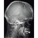 Sväljfunktionen hos Parkinsonspatienter påverkas inte av djup hjärnstimulering