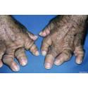 Nye data om psoriasisartritt presentert på ACR:  Cosentyx viser langtidseffekt over 3 år inkludert pasientrapportert smerte