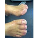 Fodterapeuter fraråder fodmasker