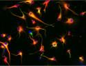 Human glioblastoma cells