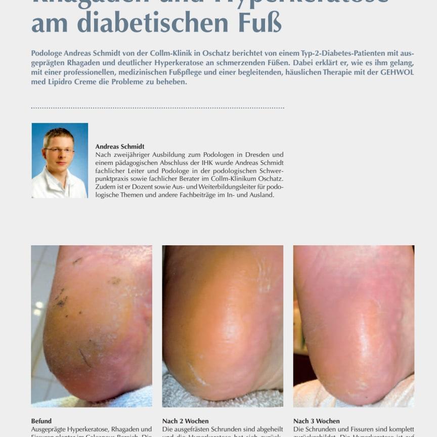 Erfahrung aus der Podologiepraxis: Rhagaden und Hyperkeratose am diabetischen Fuß