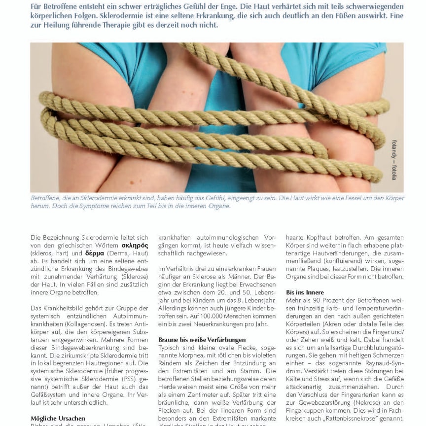 Sklerodermie: Eingeengtes Hautkostüm