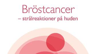Strålskador på huden – kvinnor  med bröstcancer lider i onödan