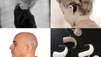 Sjukvården öppnar plånboken på glänt för cochleaimplantatvården i VGR