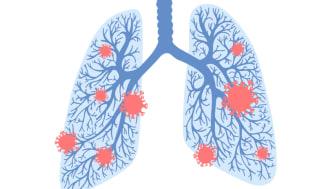 Ett av forskningsprojekten som nu får anslag från Astma- och Allergiförbundets Forskningsfond ska undersöka om människor med astma har ökad risk att bli allvarligt sjuka i covid-19 – och om de som varit sjuka kan påverkas i sin astmasjukdom efteråt.