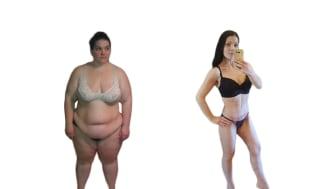 Linda 34 år, gick ner 80 kg. Bilder före och efter viktnedgång och 9 dagar efter sin hudförminskning armar och ben på Art Clinic.