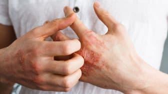 Europeiska kommissionen godkänner Rinvoq (upadacitinib) som första JAK-hämmare i EU för behandling av både vuxna och ungdomar med måttlig till svår atopisk dermatit
