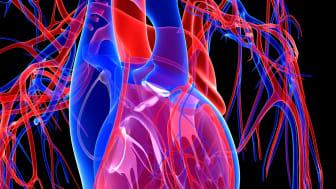 Finerenone har potential att minska risken för förmaksflimmer eller förmaksfladder hos patienter med kronisk njursjukdom och typ 2-diabetes