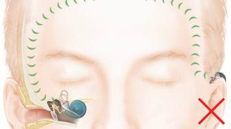 Wie das Hören mit einem Baha Knochenleitungsimplantat bei einseitigem Hörverlust funktioniert